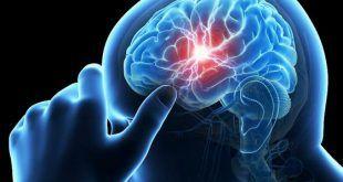 أفضل علاج للجلطة الدماغية