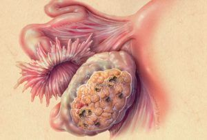 اعراض مرض السرطان -1
