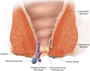 علاج البواسير -1