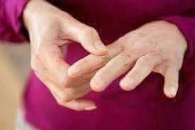 اعراض-و-اسباب-و-علاج-التعريف- الروماتويد